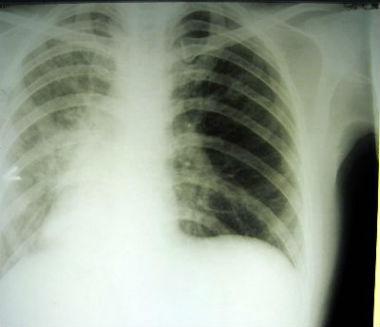 Рентген при пневмониях